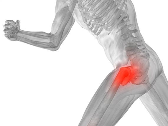 smerter i hofte og lår